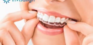 ¿CONOCES INVISALIGN?