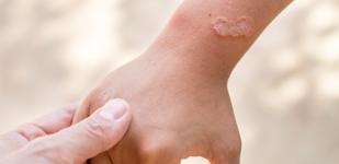 THERE ARE DIFFERENT TYPES OF PSORIASIS. DO YOU KNOW WHAT THEY ARE?