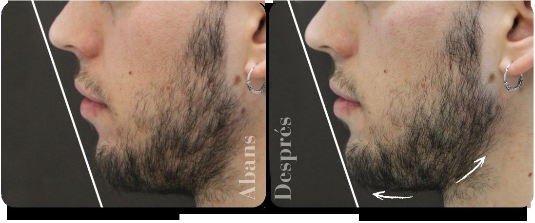 augment-de-mento-perfil-esquerra-clinica-aureo-ca.png