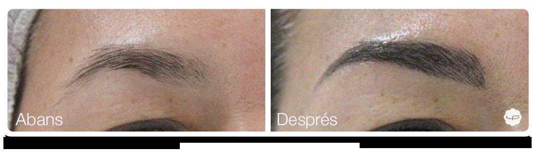 Clinica-Aureo-Dermopigmentació-de-celles-Abans-Despres-CA 06.png