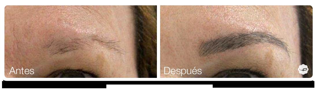 Clinica-Aureo-Dermopigmentación-de-cejas-Antes-despues-ES 05.png