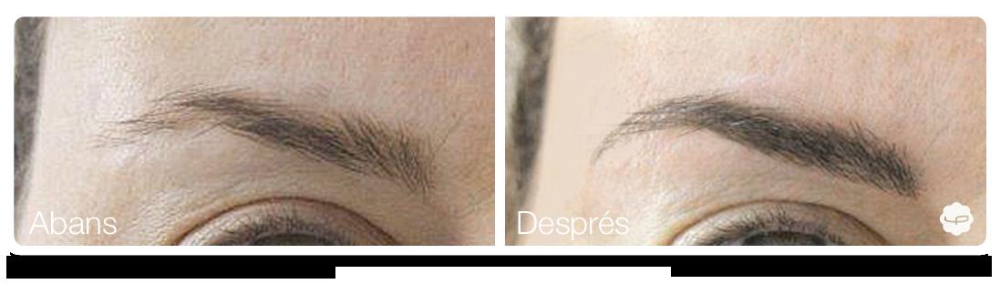 Clinica-Aureo-Dermopigmentació-de-celles-Abans-Despres-CA 01.png