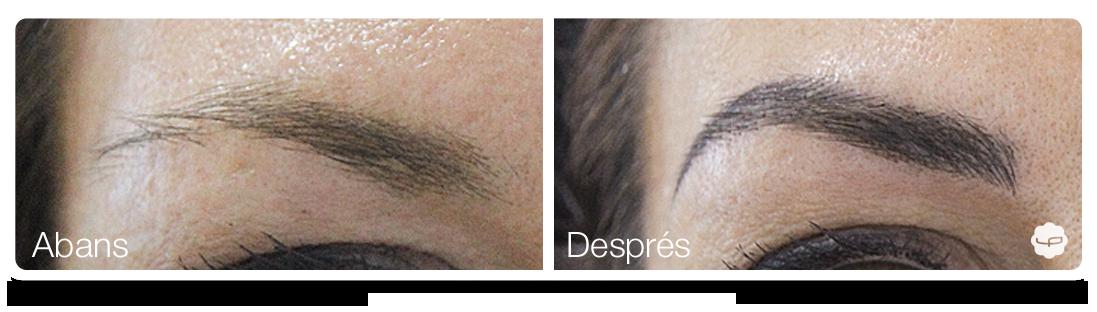 Clinica-Aureo-Dermopigmentació-de-celles-Abans-Despres-CA 02.png