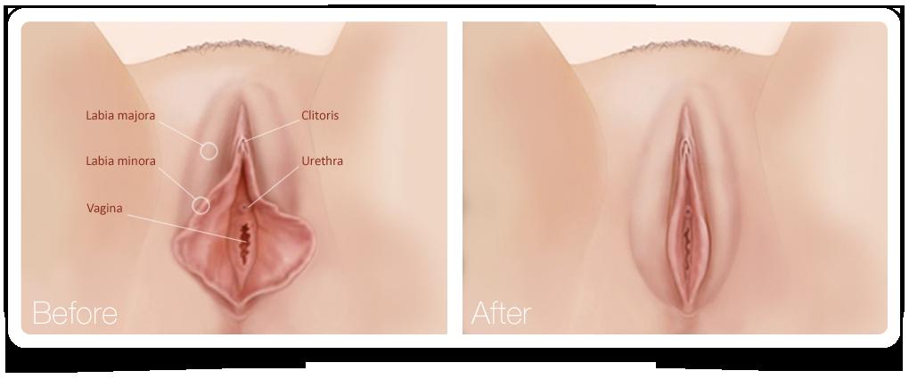 Labiaplasty or labia minora reduction.