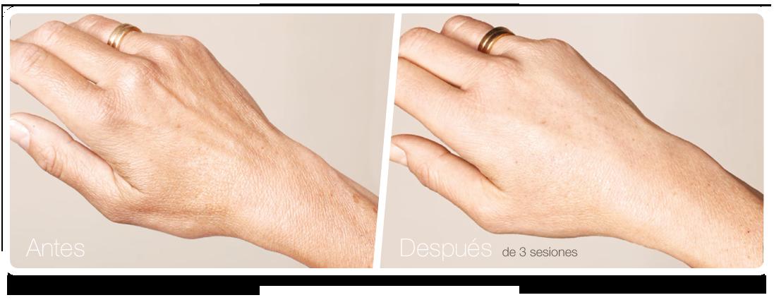 Clínica Áureo Manos Skinbooster antes después ES