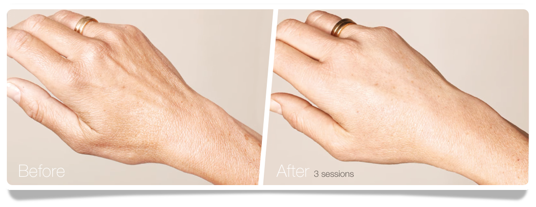 Clinica-Aureo-Hands-Skinbooster-Before-After-EN