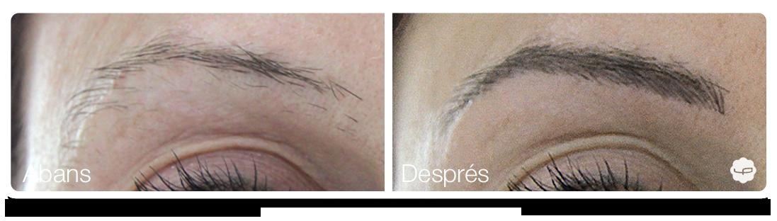 Clinica-Aureo-Dermopigmentació-de-celles-Abans-Despres-CA 04.png