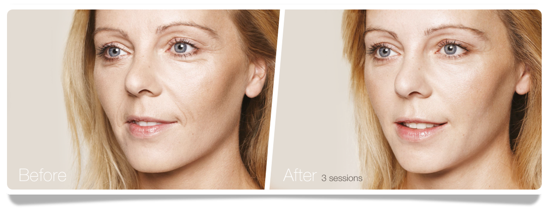 Clinica-Aureo-woman-Skinbooster-Before-After-EN