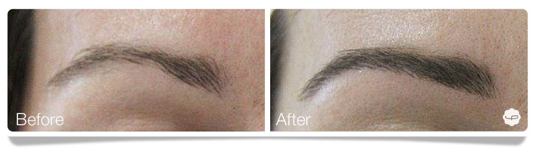 Clinica-Aureo-Dermopigmentation-eyebrows-Before-After-EN 03.png