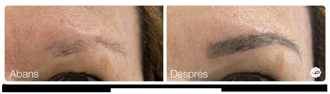 Clinica-Aureo-Dermopigmentació-de-celles-Abans-Despres-CA 05.png
