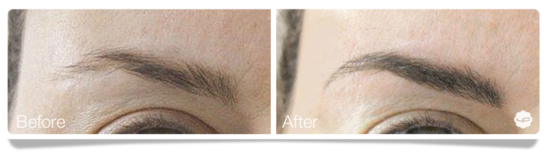 Clinica-Aureo-Dermopigmentation-eyebrows-Before-After-EN 01.png