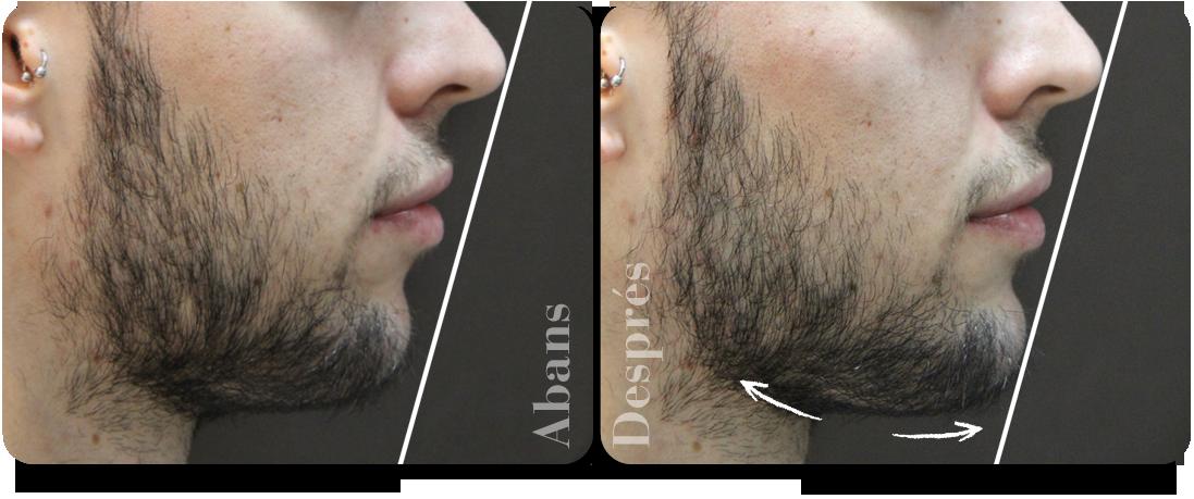 augment-de-mento-perfil-dret-clinica-aureo-ca.png