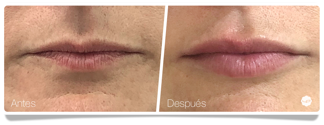Aumento-de-labios-antes-despues-clinica-aureo