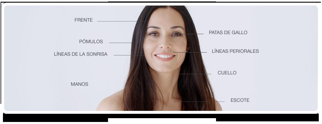 Zonas de aplicación de Skinbooster Restylane Vital