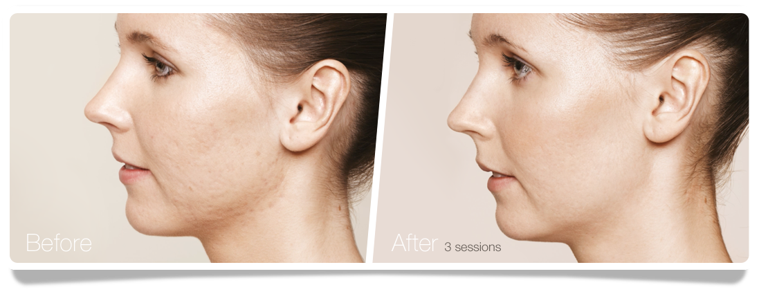 Clinica-Aureo-Acne-Skinbooster-Before-After-EN