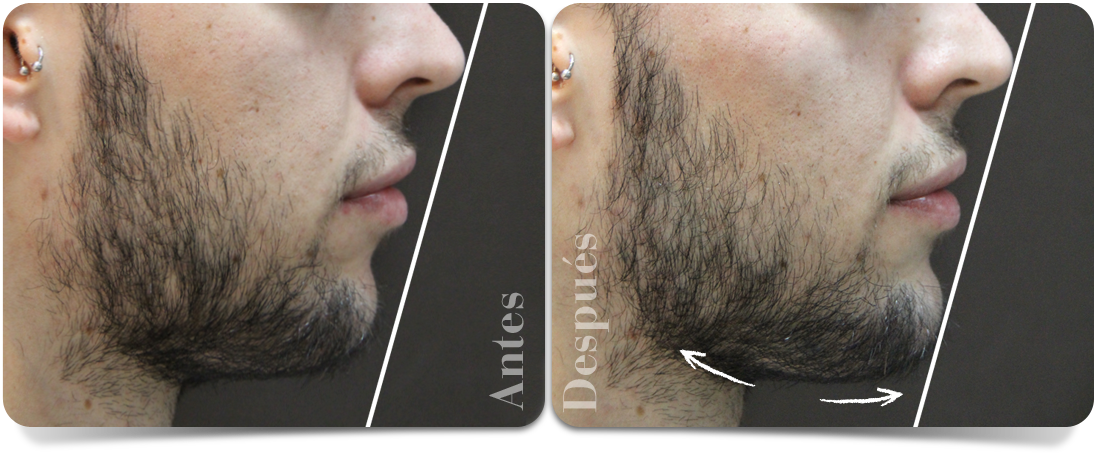 aumento-de-menton-perfil-derecho-clinica-aureo-es