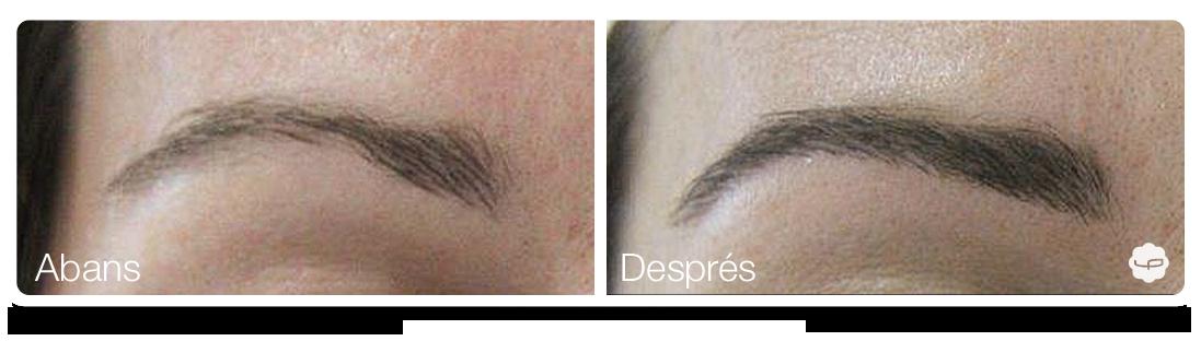 Clinica-Aureo-Dermopigmentació-de-celles-Abans-Despres-CA 03.png