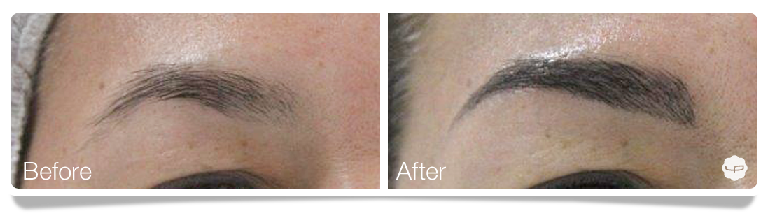 Clinica-Aureo-Dermopigmentation-eyebrows-Before-After-EN 06.png