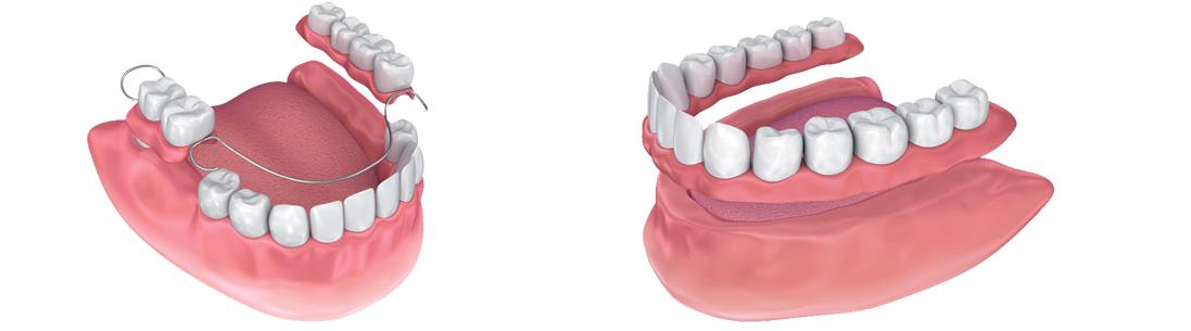 Clinica-Aureo-Protesis-Dentales-Removibles-metalica-completa-Mallorca.png